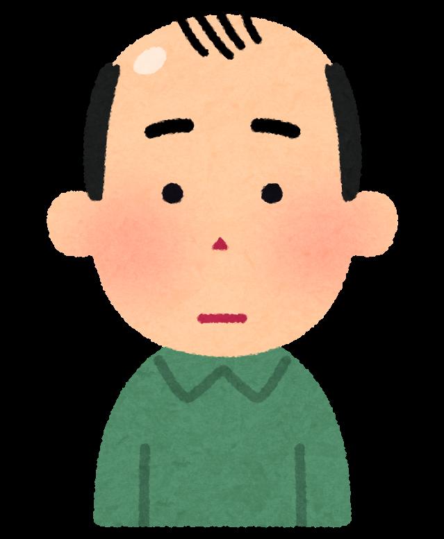 日本人「ハゲw」海外「髪の毛が無いのは男の勲章。カッコいい、憧れるぜハハハ」←コレwwww